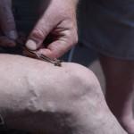 13 ceske medobrani apiterapie vcelim zihadlem